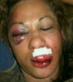 1woman badly beaten by husband lindaikejiblog