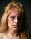 Battered-Womens-Syndrome-1