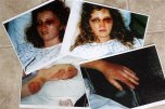 Police photos of Heather Thompson in a hospital bed are displayed at her home in Monroe, N.C. Thursday, May 28, 2009. Thompson was 23 in 1994 when her then-husband Thomas Howard Price Jr beat her senseless, leaving her with bone spurs, pinched nerves and osteoarthritis. She has taught law officers about domestic violence in the years since Price vowed in a letter from prison to kill her and their daughters. Price was released Friday May 29, 2009, from a federal prison in South Carolina. (AP Photo/Nell Redmond)